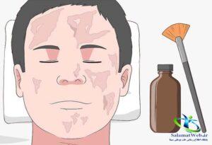 حذف چربی صورت با لایه برداری شیمیایی