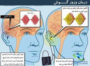 درمان قطعی وزوز در گوش,