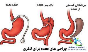 جراحی های لاغری