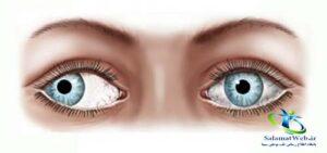 انحراف چشم به سمت خارج