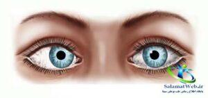 انحراف چشم داخلی