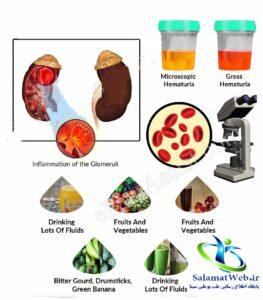 درمان گیاهی ادرار خونی