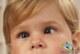 عارضه انحراف چشم چیست؟+درمان های مختلف انحراف چشم