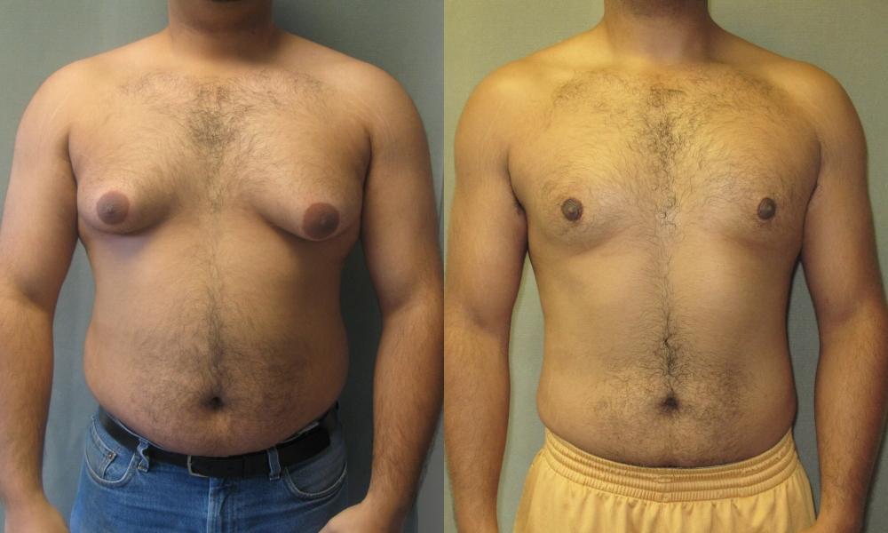 عمل کوچکردن سینه در مردان