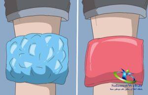 درمان تق تق زانو