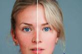 بیماری روزاسه و تفاوت آن با لوپوس+درمان روزاسه با طب سنتی