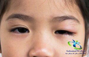 پماد برای ورم پلک چشم