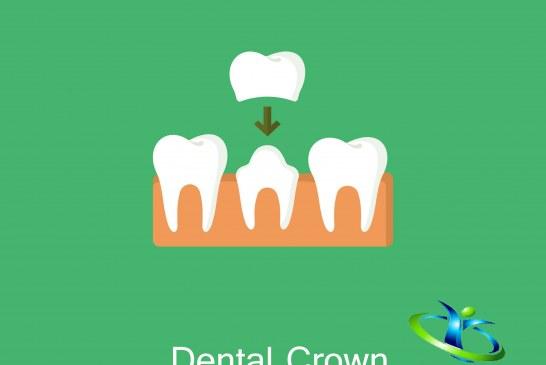 روکش دندان و انواع آن+ مزایا و معایب روکش دندان