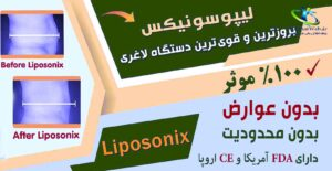 عوارض لیپوسونیکس