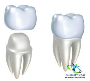 مزایای استفاده از روکش دندان