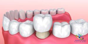 عوارض روکش دندان