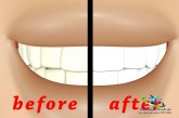 سریع ترین روش سفید شدن دندان +داروی گیاهی سفید شدن دندان