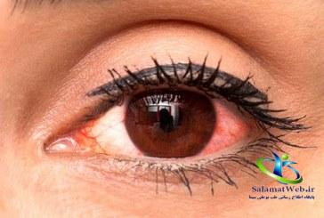 بیماری عفونت چشم چه علائمی دارد؟ + درمان سریع عفونت چشم
