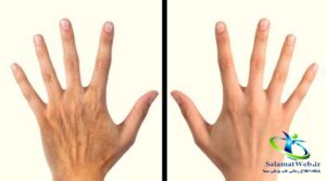 جوانسازی پوست دست با طب سنتی