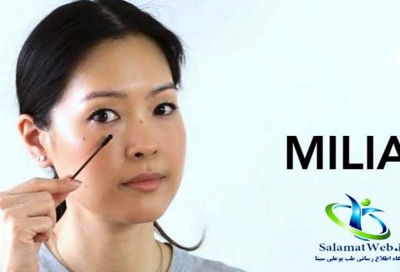 بیماری پوستی میلیا چیست؟+علل پیدایش و روش های درمان میلیا