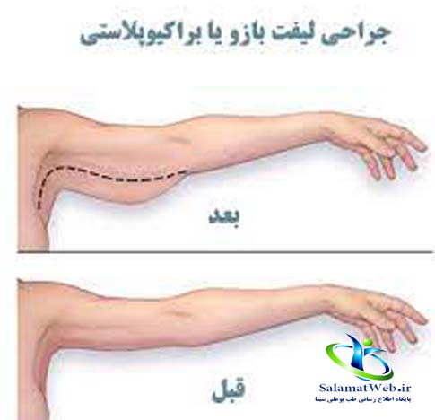 جراحی لیفت بازو از زیر بغل