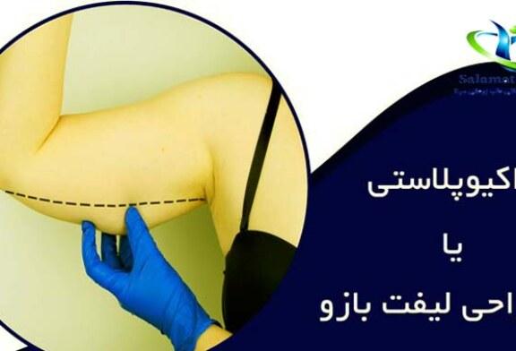 جراحی لیفت بازو چگونه انجام می شود؟+ مزایا و عوارض عمل لیفت بازو
