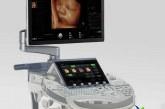 سونوگرافی چیست؟+کاربرد سونوگرافی در تشخیص بیماری ها